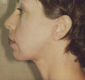 After-Facelift With Chin Implants