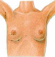figa5-Breast Augmentation