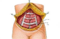 figc1 Abdominoplasty
