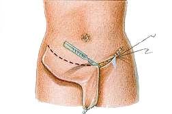 figd1-Abdominoplasty