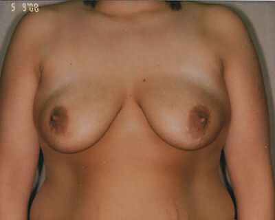 After-Scarless Breast Reduction