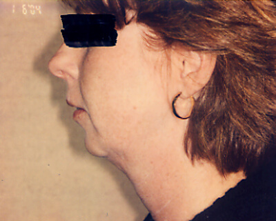 Before-Cheek and Chin Implants