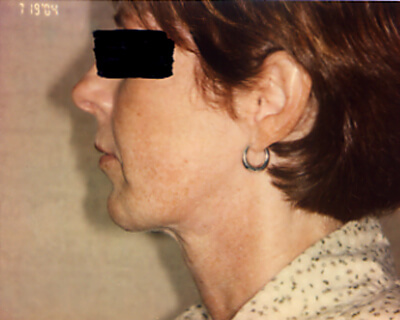 After-Cheek and Chin Implants