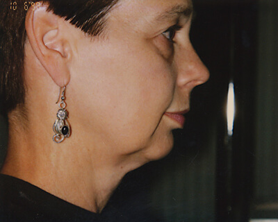 Before-Facelift With Chin Implants