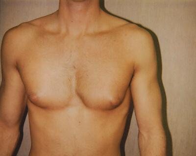 Before-Gynecomastia