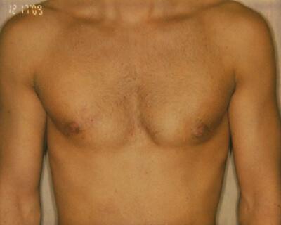 After-Gynecomastia