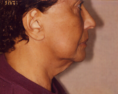 Before-Neck Lift