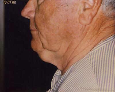 Before-Neck Liposuction