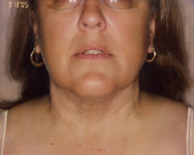 After-Neck Liposuction