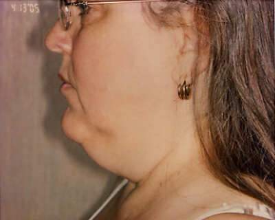 Before-Neck Liposuction