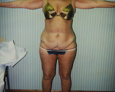 Before-Abdominoplasty