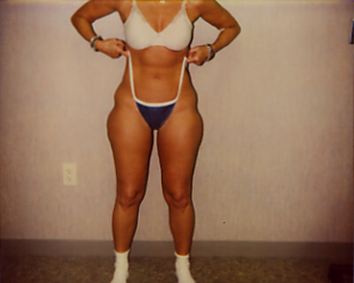 Before-Liposuction Hips/Inner & Outer Thighs