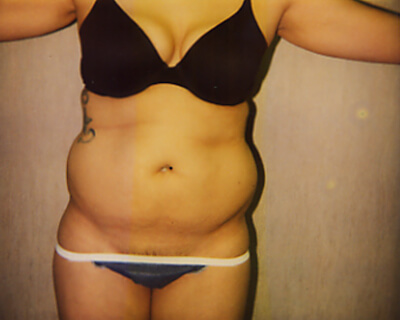 Before-Liposuction Abdomen & Waist