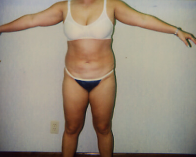 Before-Liposuction Abdomen, Waist, & Back