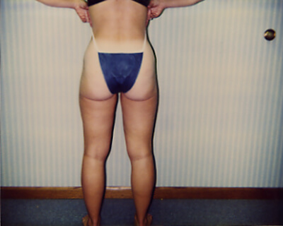 After-Liposuction Hips, Outer, & Inner Thighs