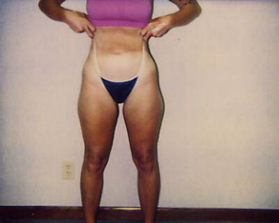 Before-Liposuction Hips, Outer, & Inner Thighs
