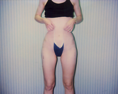 After-Liposuction Hips & Outer Thighs