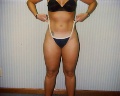 Before-Liposuction Outer Thighs