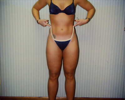 After-Liposuction Outer Thighs
