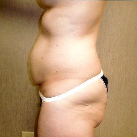 Before-Abdominoplasty