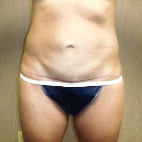 After-Abdominoplasty