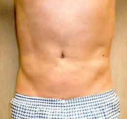After-Liposuction Abdomen & Flanks