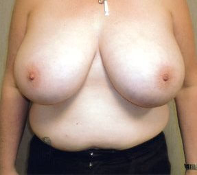 Before-Scarless Breast Reduction