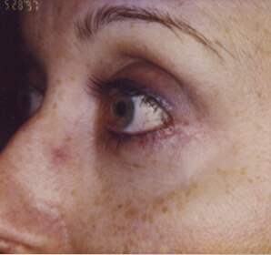 After-Lower Eyelid Blepharoplasty – Baggy Eyelids