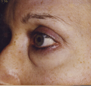 Before-Lower Eyelid Blepharoplasty – Baggy Eyelids