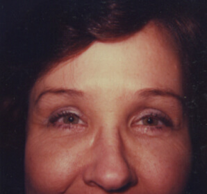 After-Upper Brow Lift for Baggy Eyes