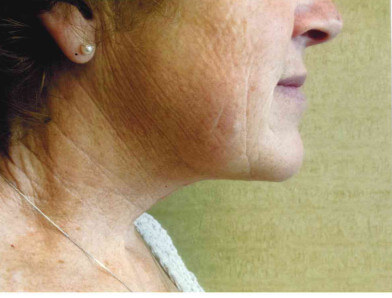 After-Neck Lift