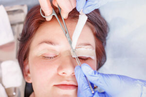 young women getting eyelid surgery